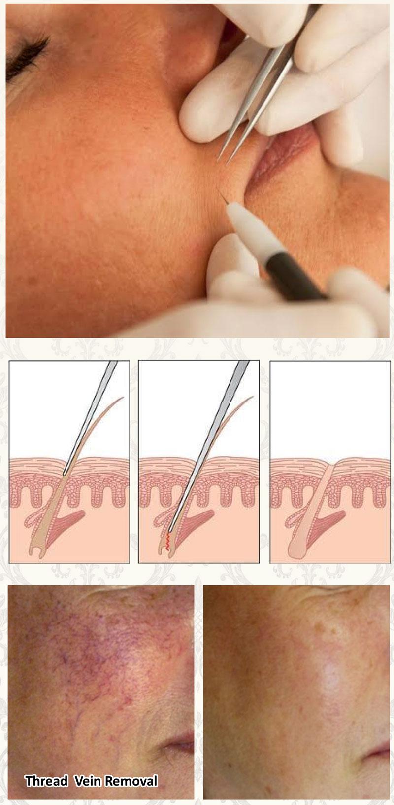 Electrolysis Permanent Hair Removal | Desert Rose Health